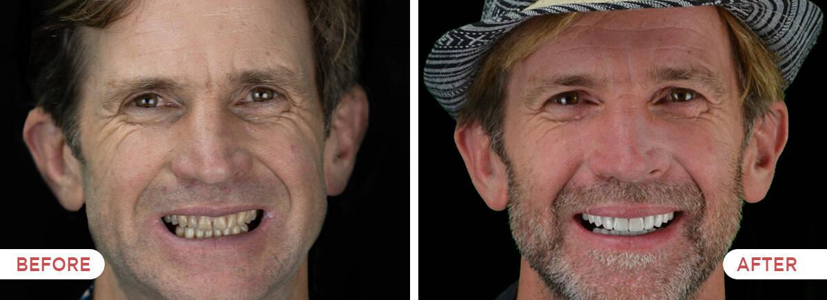Guatemala Dental Team before and after showcase - 20 porcelain veneers