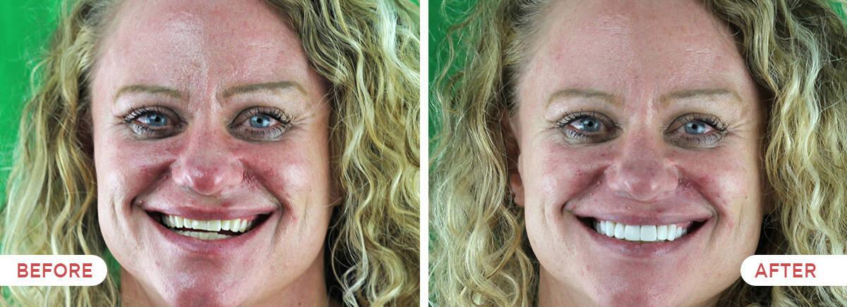 Guatemala Dental Team before and after showcase - 10 resin veneers