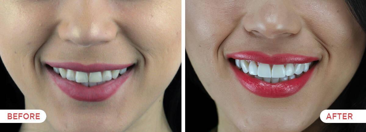 Guatemala Dental Team before and after showcase - 20 resin veneers